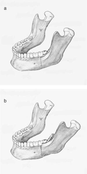 La osteotomía incompleta se produce con frecuencia a nivel del ángulo mandibular (15a). El fragmento proximal rota sobre esta zona de fractura en tallo verde pudiendo pasar desapercibida (15b).