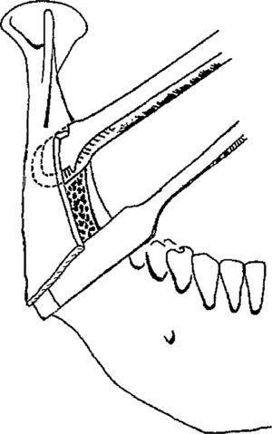 Mommaerts recomienda colocar un escoplo o periostotomo en la osteotomía horizontal para evitar la fractura indeseada. Dibujo publicado de Mommaerts11 y reproducido con la autorización del autor.