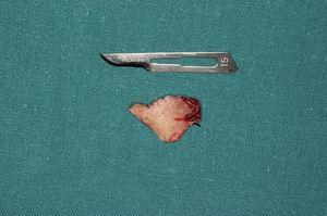 Caso 1: Fractura del ala vestibular del fragmento proximal.