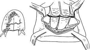 Fractura en paladar en un paciente edéntulo. Dibujo publicado de Li56 y reproducido con la autorización del autor.