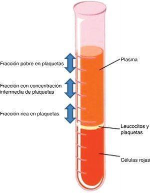 Fases obtenidas tras la centrifugación de sangre anticoagulada.