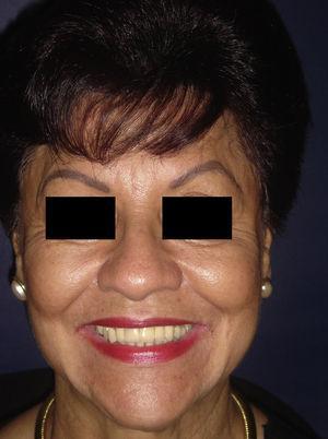 Recuperación completa de la función del nervio facial a los 30 días.