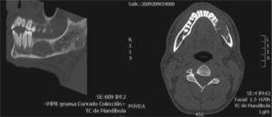 Imágenes de TC de lesión en la mandíbula multilocular con bordes mal definidos y perforación cortical.