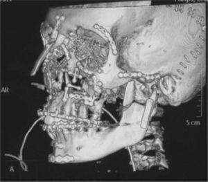 Fractura subcondílea bilateral en un paciente con una fractura panfacial. Se realizó un abordaje transparotídeo anterior bilateral para la reducción abierta y la fijación interna. El lado derecho fue fijado con dos placas. En la fractura subcondílea izquierda sólo pudo emplazarse una placa, que fue de tipo DCP.