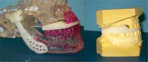 Férula quirúrgica CAD/CAM del segundo caso clínico. Correspondencia entre modelo esterolitográmico y modelos de impresión dental.