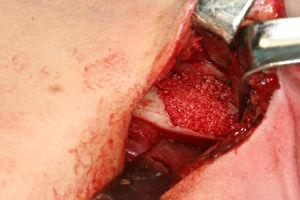 El defecto óseo se reconstruyó con el hueso liofilizado (Puros®) mezclado con plasma rico en plaquetas y cubierto con una membrana de colágeno reabsorbible.