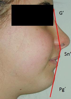 Angulo del perfil de Arnett y Bergman para valoración estética del perfil blando en fase T3 de la paciente n.° 4.