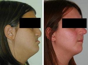Paciente n.° 1: fisura labio palatina bilateral completa. Izquierda: tras fracaso de DO intraoral. Derecha: tras 3 años de seguimiento posdistracción mediante RED.