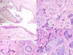 a) Área quística con recubrimiento epitelial y cápsula conectiva fibrosa (H&E 10X); b) detalle del la zona quística con recubrimiento epitelial delgado no queratinizado (H&E 30X); c) islas y cordones epiteliales en un estroma conectivo fibroso (H&E 10x); d) detalle del componente epitelial ameloblástico con diferente disposición (H&E 20x); e) cordón epitelial «desmoplásico» con bordes agudos (H&E 40x); f) pequeño nido ameloblástico (H&E 40x).