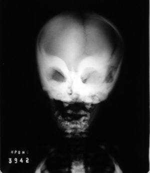 Antero-posterior radiograph of the face. Note a higher radiopacity of the cortical bone of the maxilla and bilateral periorbital region.
