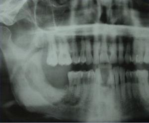 Ortopantomografía correspondiente al mismo paciente, donde se puede apreciar área de osteolisis en la región del ángulo mandibular derecho.