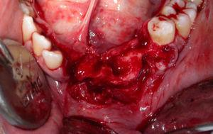 Surgical wound following total exeresis of the lesion and extraction of involved teeth.