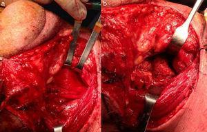 Imagen intraoperatoria: a) Exposición de zona prevertebral mediante abordaje cervical anterior externo; b) Extensa exostosis ósea anterior de C3-C4-C5.