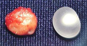 Macroscopic view of the lesion and the capsule and surrounding tissue.