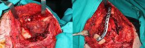 Fotografías intraoperatorias: lesión exofítica mandibular. Mandibulectomía segmentaria y reconstrucción con placa de osteosíntesis preformada.