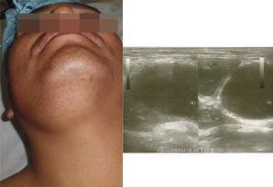 Tumoración blanda submandibular derecha. Estudio ecográfico de los tejidos blandos del cuello que evidencia glándula submaxilar derecha desplazada por la lesión descrita.