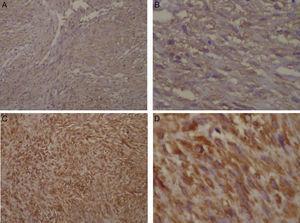 Microfotografías de la inmunohistoquímica: positividad para actina muscular lisa: A) 10x de magnificación. B) 40x de magnificación. Positividad para vimentina: C) 10x de magnificación. D) 40x de magnificación.
