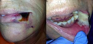 a) Zona de necrosis delimitada que afecta a piel, bermellón y comisura del labio inferior, rodeada de un halo blanco y otro violáceo externo; b) Visión intraoral, donde se observa necrosis en la mucosa.