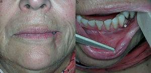 Resultado a largo plazo tras la extirpación del tejido necrótico. Vista exterior (a) e intraoral (b).