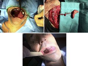 Pac. n.° 20. Reconstrucción de cara lateral lengua mediante buccinador de pedículo esqueletizado con arteria facial y venas concomitantes.