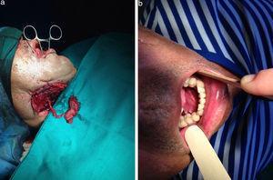 Pac. n.° 18. Reconstrucción del suelo de boca con buccinador de pedículo esqueletizado con arteria facial y venas concomitantes.