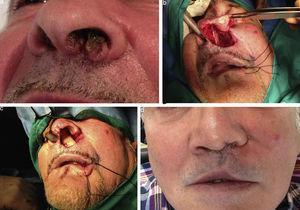 Pac. n.° 24. Carcinoma de suelo y septum nasal. Colgajo buccinador de pedículo superior a través de mucosa vestibular maxilar.