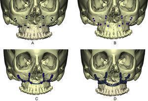 Protocolo de planificación inversa. A) Se define la situación de los tornillos de osteosíntesis en zonas seguras con buena calidad ósea, obteniendo CT1. B) Se realiza la cirugía de modelos virtual obteniendo la planificación (PL). C) Diseño CAD-CAM de la miniplaca personalizada sobre la superficie de PL. D) Diseño CAD-CAM de la guía hueso-soportada sobre la superficie de CT1.