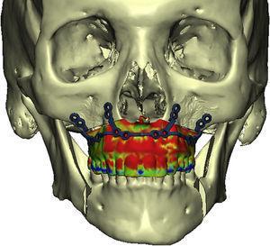 Estudio de precisión del caso 5 tras la superposición de las imágenes 3D de la planificación (PL) con las imágenes de la TC postoperatoria. La información obtenida fue procesada usando métodos estadísticos, representando la desviación de cada superficie en una escala colorimétrica.