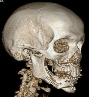 Tomografía computarizada postoperatoria del caso 5.