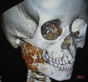 Aspecto tomográfico de osteoblastoma mandibular en niña de 6 años de edad.