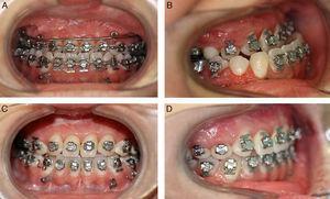 Imágenes oclusales pre- y poscirugía. A y B: Oclusión prequirúrgica. C y D: Oclusión postquirúrgica.