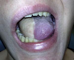 Glosectomía 2/5 reconstruida con colgajo sural.