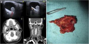 A) Ecografía Doppler de región parotídea izquierda, donde se observa una lesión de predominio quístico (a), con un polo sólido (flecha), sin vascularización detectable con el Doppler color (b). En la tomografía computarizada se aprecia una lesión bien definida de predominio graso con un polo sólido localizada en el lóbulo superficial de la parótida izquierda, en cortes axial (c) y coronal (d). B) Espécimen quirúrgico en el que se observa una cavidad quística con un nódulo calcificado en su interior cubierto por piel con folículos pilosos.