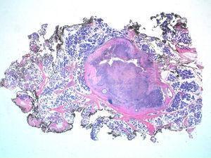 En la imagen se observa una tumoración predominantemente sólida con áreas quísticas. La tumoración se halla bien delimitada, con una seudocápsula fibrosa que la separa del parénquima de glándula salival. Hematoxilina-eosina (lupa).