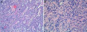 Rasgos citológicos de las neoplasias (hematoxilina-eosina 20×). A) La celularidad es de talla media, con amplio citoplasma eosinófilo. Los núcleos son de localización central y presentan leve atipia, con nucléolo prominente y refuerzo de la membrana nuclear. B) La segunda neoformación, por contra, mostraba un crecimiento más trabecular y en hileras, con márgenes mal definidos. Las células también eran de talla media, con citoplasma eosinófilo. La atipia nuclear era mayor, con más anisocariosis y cromatina vesiculosa.