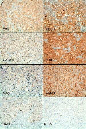 Perfil inmunohistoquímico de ambas lesiones (hematoxilina-cromógeno 20×). A) La primera lesión mostró expresión difusa e intensa de mamoglobina (Mmg), gross cystic disease fluid protein (GCDFP), GATA-3 y S-100. B) En la segunda lesión la expresión difusa de GCDFP y GATA-3 se mantenía, siendo la expresión de Mmg débil. La segunda lesión no mostró expresión de S-100.