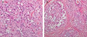 A) Neoformación polilobulada separada por tabiques fibrosos en glándulas submaxilares (HE, ×200). B) Células neoplásicas con atipia leve-moderada que muestran luces glandulares con una secreción eosinófila (HE, ×400).
