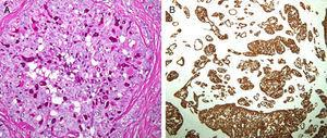 A) Secreción glandular que se tiñe intensamente con PAS-diastasa (PAS-diastasa, ×200). B) Patrón artquitectural microquístico teñido con panqueratinas (IHQ AE1-AE3, ×40).