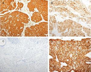 A) Mamoglobina (IHQ mamoglobina, ×100). B) Tinción del tumor con GCDFP-15 (IHQ BRST-2, ×100). C) Negatividad del MASC para receptores estrogénicos. D) MASC fuertemente positivo para proteína S-100 (IHQ S-200, ×100).