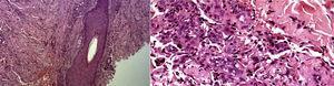 A la derecha se observa una proliferación vascular localizada entre folículo piloso y su músculo erector, se observa hemorragia importante en la dermis reticular (HyE 10x). A la izquierda en la dermis reticular se observan canales vasculares estrechos, formados por células alargadas, fusiformes asociadas a extravasación eritrocitaria (HyE 40x).