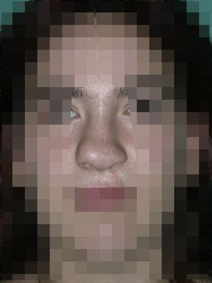 Paciente con secuelas de labio y paladar hendido, con resultado de asimetría de punta y dorso nasal producida por desviación septal hacia la derecha y deformidad de cartílagos alares.