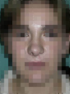 Postoperatorio de la paciente de la figura 5 un año tras la intervención quirúrgica (septoplastia extracorpórea, plastia de la punta y cincha de alares por vía cutánea). La punta y el dorso nasal quedan centrados.