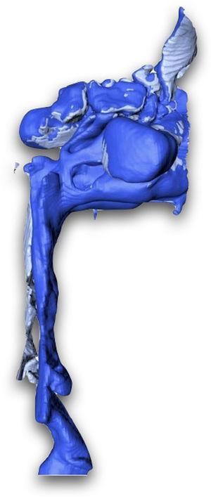Superposición de imagen 3D (inicial) del espacio faríngeo superior e imagen 3D (tras BIRD). Visión lateral: volumen inicial de 4.858,6 mm3; volumen final de 14.042,51mm3 tras BIRD. El punto de máxima constricción (choke point) en su dimensión AP varía de 3 a 5,67mm.