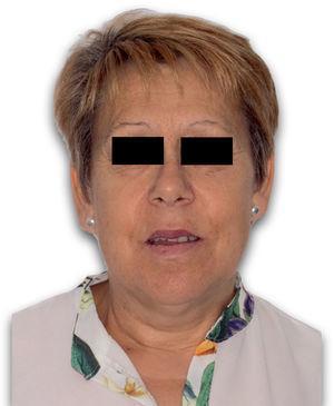 Fotografía de frente tras avance maxilar.