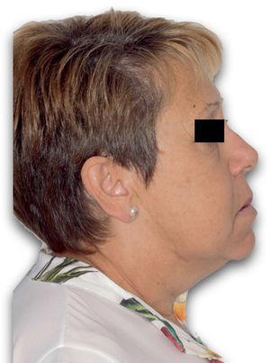 Fotografía de perfil tras avance maxilar.