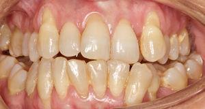 Fotografía intraoral a los 12 meses tras el procedimiento quirúrgico del maxilar superior.