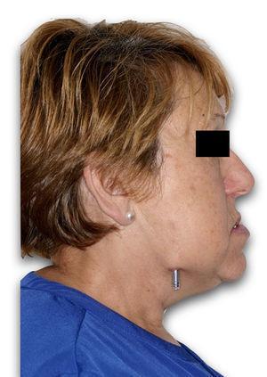 Fotografía de perfil al final del procedimiento BIRD.