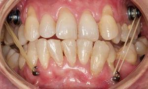 Fotografía intraoral tras avance maxilar, tracción esquelética con fuerzas de clase III.
