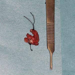 Pieza quirúrgica previo a su estudio anatomopatológico.