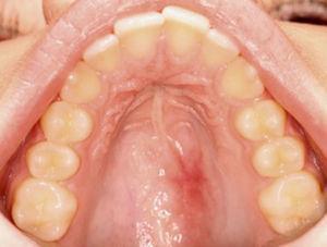 Imagen de cicatrización al mes y medio posquirúrgico.